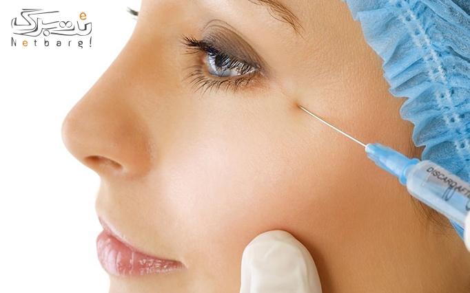 تزریق حرفه ای بوتاکس مسپورت توسط دکتر کلباسی