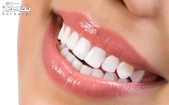 جرم گیری و بروساژ دندان توسط دکتر دشتی