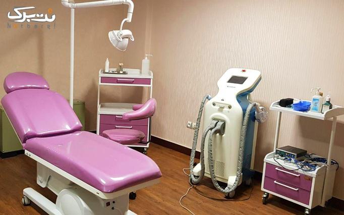 برداشتن خال یا زگیل با rf در مطب دکتر مکارم