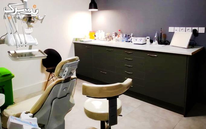 کامپوزیت دندان توسط دکتر محمدی