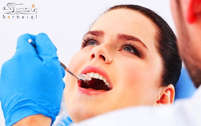 خدمات کامپوزیت دندان توسط دکتر فروتن نژاد