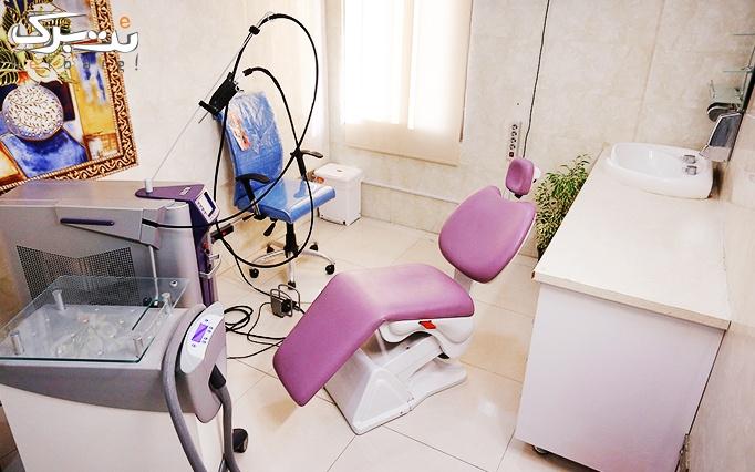 لیزر موهای زائد الکساندرایت در مطب دکتر سپهری