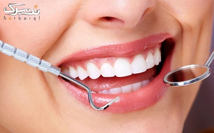جرم گیری و بروساژ دندان در مطب دکتر ساره بازوند