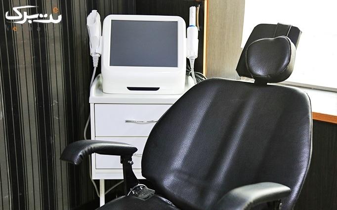 لیزر موهای زائد الکساندرایت در مطب خانم دکتر عظیمی