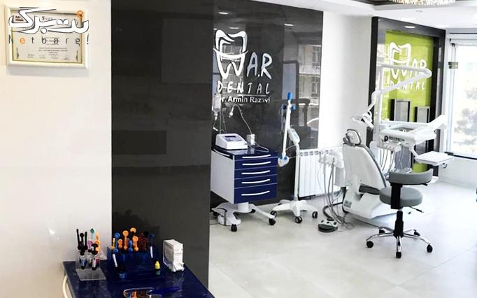 جرم گیری و بروساژ دندان توسط دکتر آرمین رضوی
