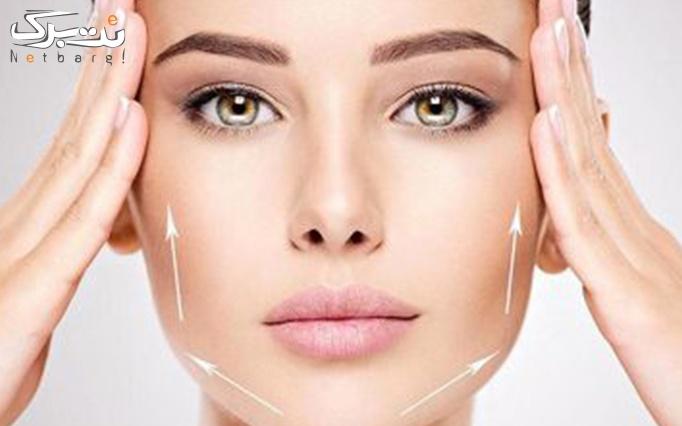مزونیدلینگ پوست در مطب دکتر توانا راد
