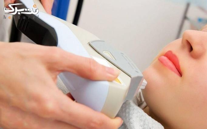 لیزر موهای زائد زیر بغل در مطب دکتر لشگری
