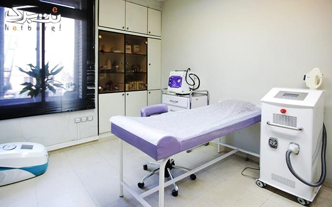 لیزر موهای زائد الکساندرایت در مطب دکتر ملک احمدی