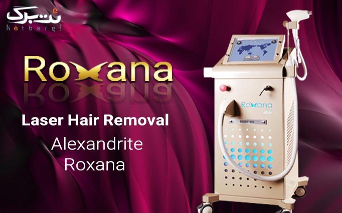 لیزر موهای زائد با دایود در مطب دکتر محققی