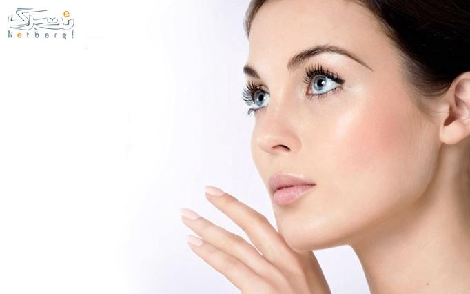 خدمات پوست در سالن زیبایی یسنا