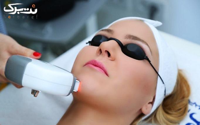 لیزر موهای زائد با دستگاه shr ساختمان پزشکان دیابت