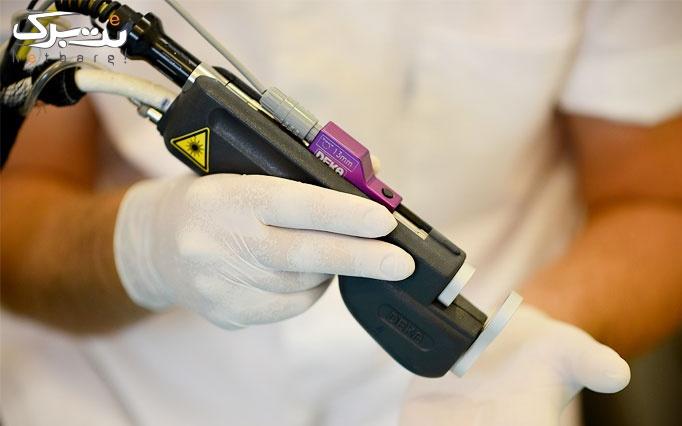 لیزر موهای زائد الکساندرایت در مرکز لیزر دمس