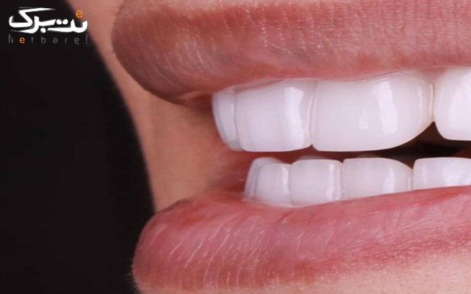 خدمات دندانپزشکی در کلینیک مُروا