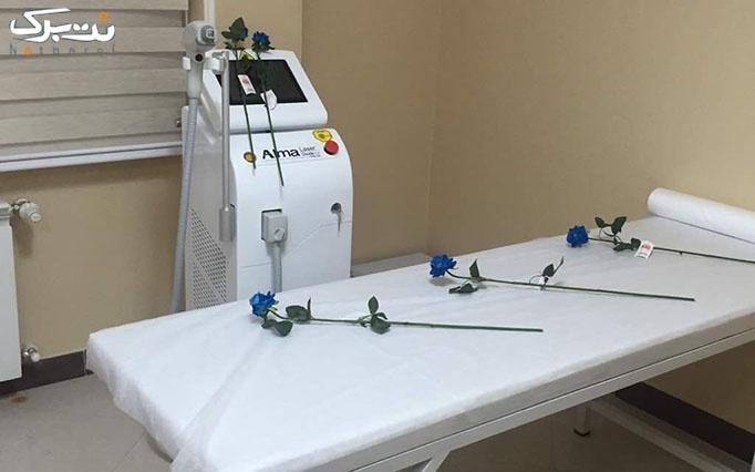 تزریق بوتاکس دیسپورت در مطب خانم دکتر عرفانی