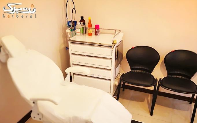 لیزر IPL در مطب دکتر مظفر