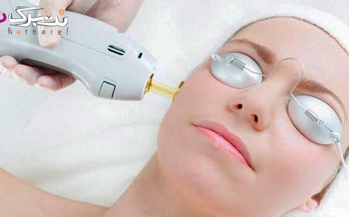 لیزر الکساندرایت زیر بغل در مطب دکتر رفیعی