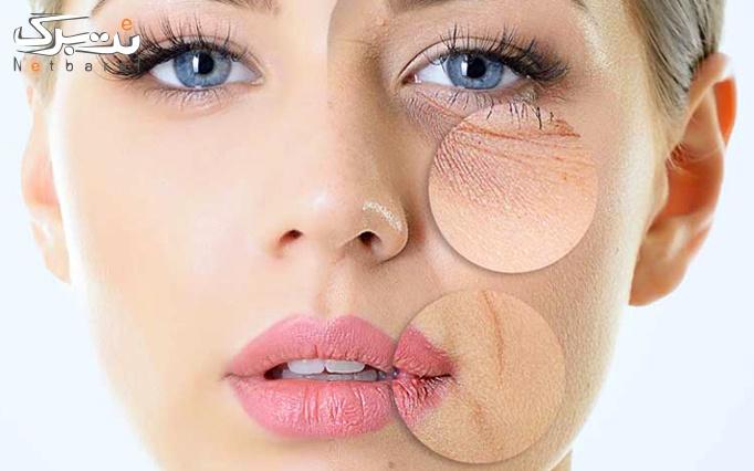 میکرونیدلینگ پوست در مطب دکتر رحیمی