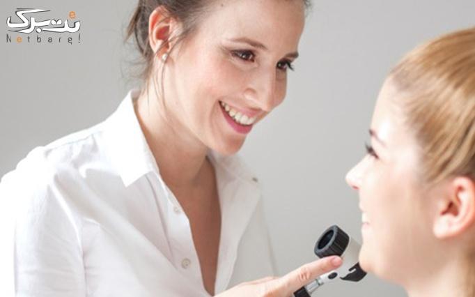 مزونیدلینگ پوست در مطب دکتر ثابت