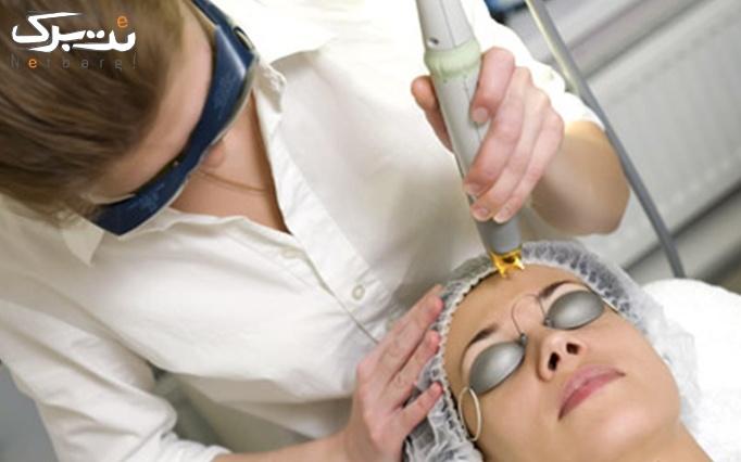 لیزر موهای زائد در مطب دکتر سیدصدوقی
