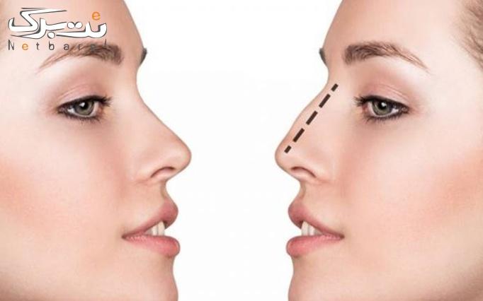 پلاکسر بینی در مطب دکتر طباطبایی
