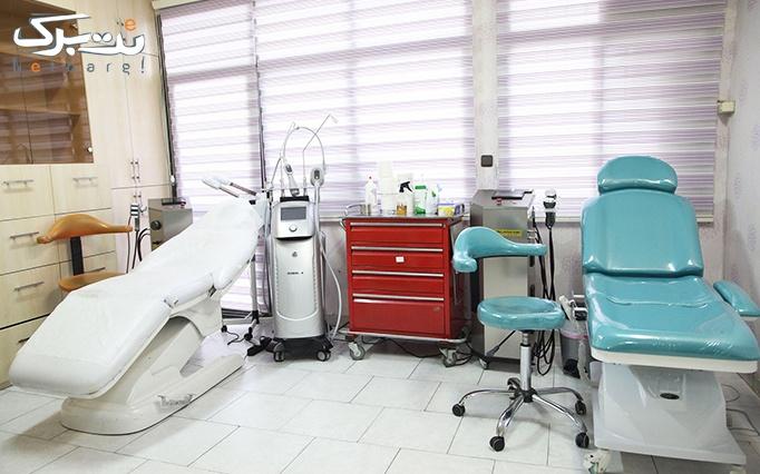 RF صورت یا RF غبغب در مطب دکتر مظلومی