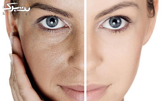 میکرونیدلینگ پوست توسط دکتر فروغی فر