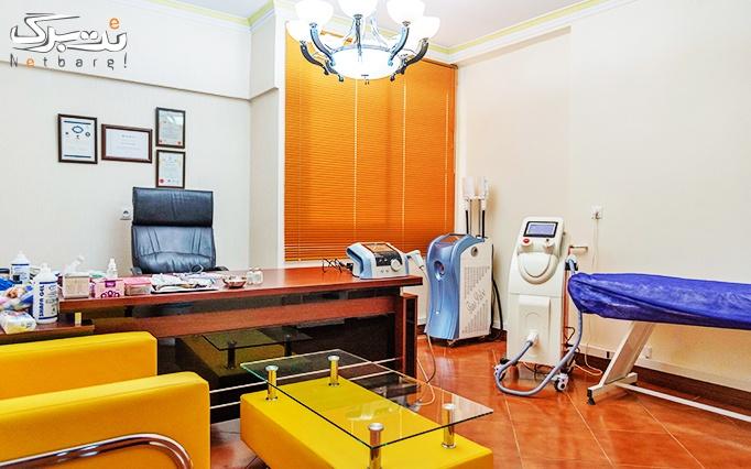 پاک کردن تاتو در مطب دکتر صدفی