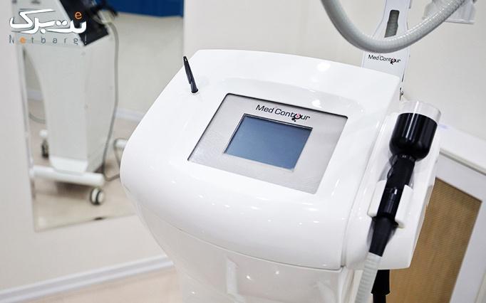 لیزر موهای زائد ویژه زیر بغل در مطب دکتر ماهانی