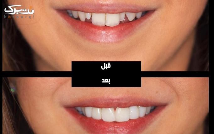 کامپوزیت دندان توسط دکتر لشگری