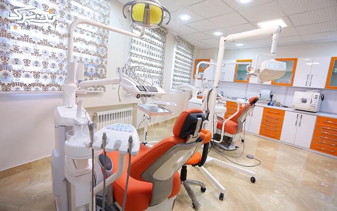 کامپوزیت IPS دندان در مطب دکتر امامی نسب