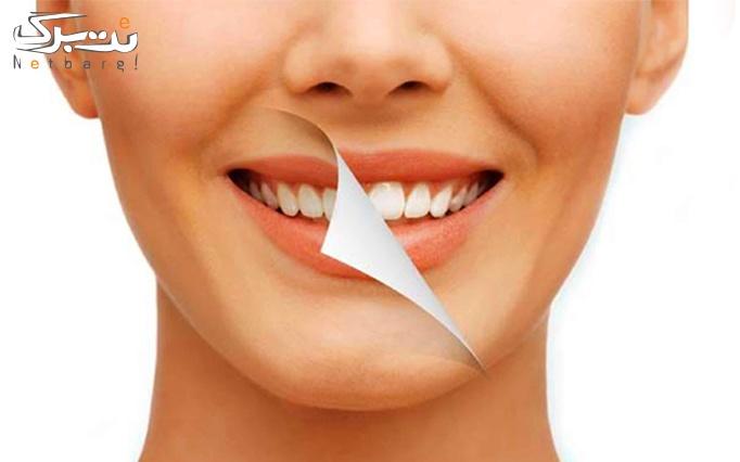 بلیچینگ دندان در مطب دکتر مریم کامیاب