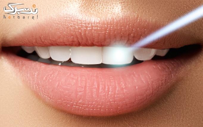بلیچینگ دندان در مرکز دندانپزشکی لاویه