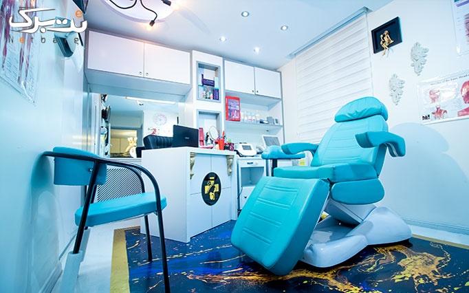 تزریق فیلر ژوویدرم بنفش در مطب طلایی