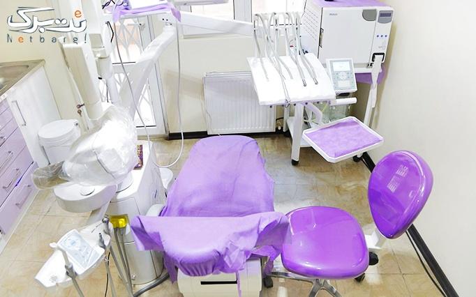جرم گیری و بروساژ دندان در مطب دکتر اصلانی