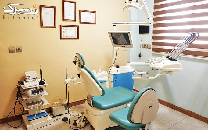 کامپوزیت ونیر دندان در مطب دکتر خانچی