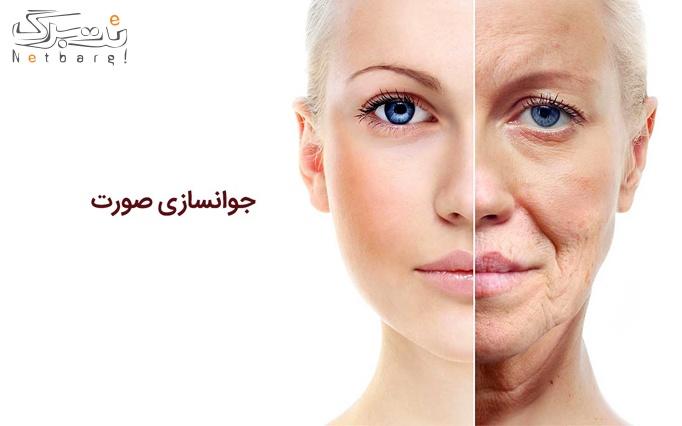 جوانسازی با آر اف در مطب دکتر حسینیان ( اریانا )