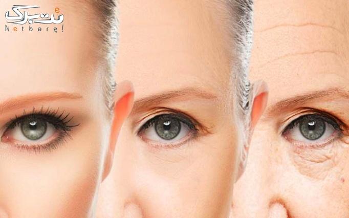 جوانسازی پوست با پلاسما جت توسط دکتر روزبهانی