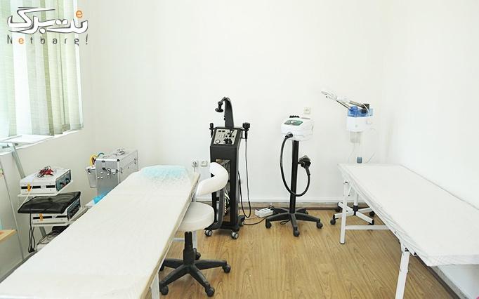 برداشتن خال تا 3 میلی متر در مطب دکتر نانکلی