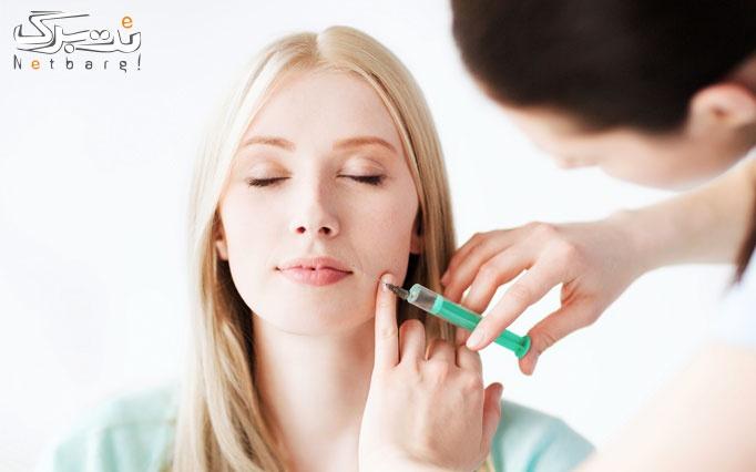 تزریق بوتاکس کنیتوکس در مطب دکتر دارابی