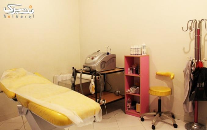 لیزر رفع جای جوش در مطب خانم دکتر حاتمی