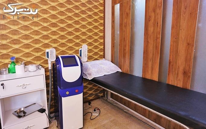 پلاسما جت در مطب دکتر کریمی