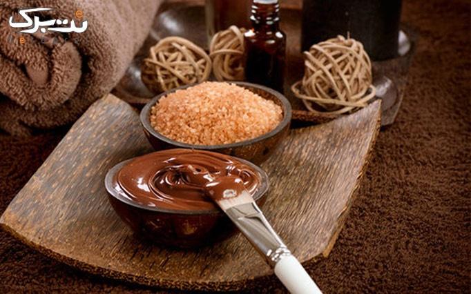 شکلات تراپی در مطب دکتر طلوع