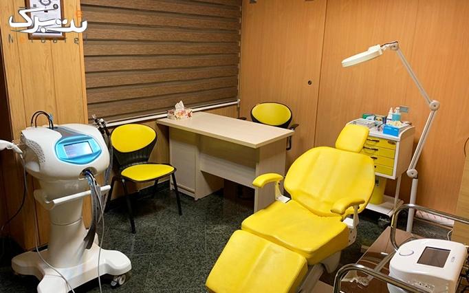 دستمزد تزریق ژل در مطب دکتر حاجیان