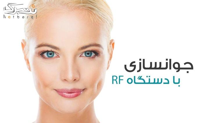 جوانسازی صورت با RF در مرکز پزشکی ورزشی آسمان