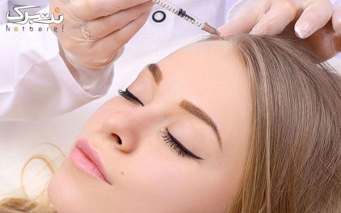 مزوتراپی سر یا صورت در مطب دکتر برجی