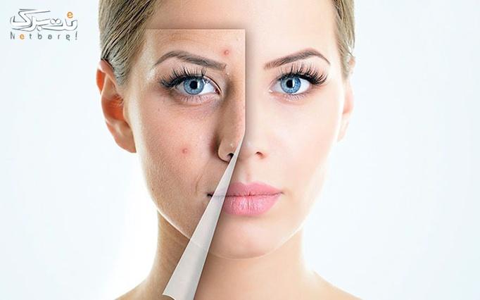 پاکسازی پوست در آرایشگاه اطلس