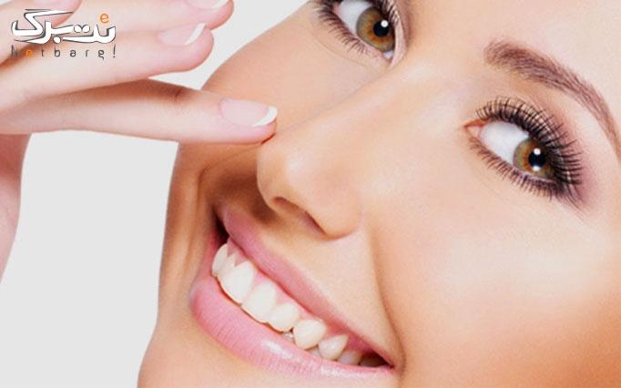 کوچک کردن بینی در مطب زیبایی دکتر بهاره عبدی