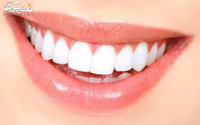 بیلچینگ دندان در دندانپزشکی راحیل