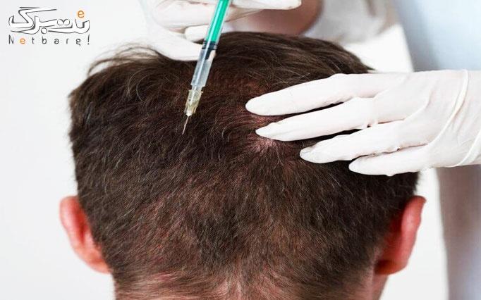 مزوتراپی موی سر در مطب زیبایی رز