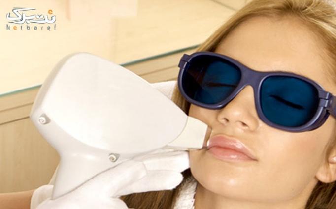 لیزر IPL موهای زائد در کلینیک پوست و مو و زیبایی ونک(خانم دکتر عمانیان)